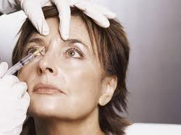 Botox Injections in Essex