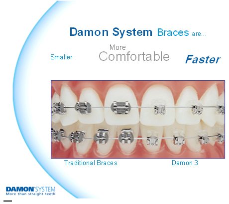 Damon Clear Braces in Essex